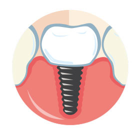 Implant Dentistry Icon